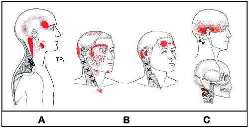 Los dolores de cabeza cervicales