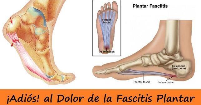 Fascitis plantar: qué es y ejercicios para evitar el dolor