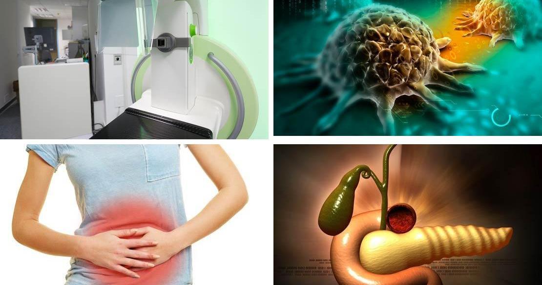 10 señales de advertencia precoz del cáncer de páncreas