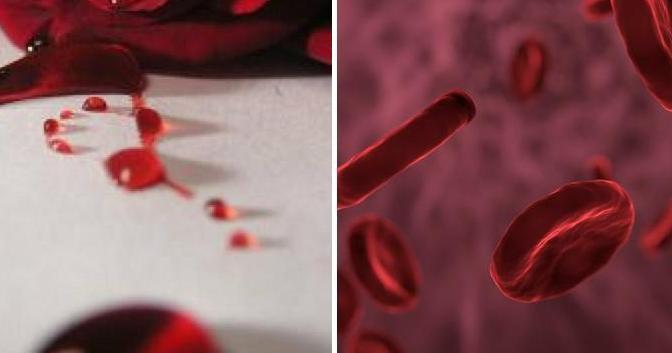 Diferencias entre el manchado y la menstruación: características distintivas básicas