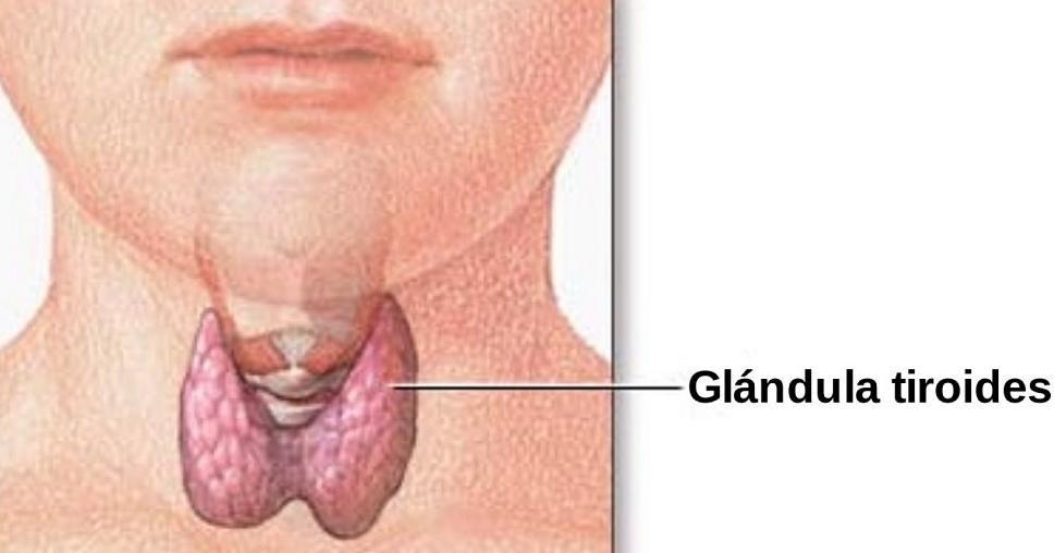 Información básica sobre el hipotiroidismo