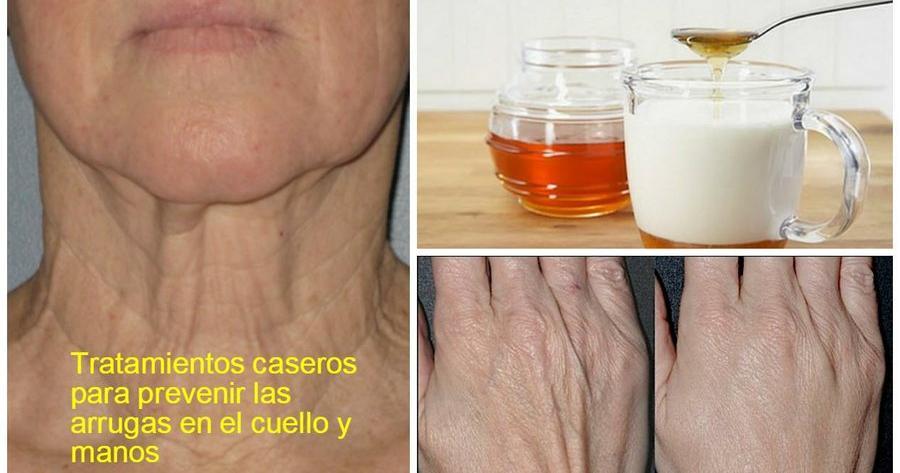 Tratamientos caseros para prevenir las arrugas en el cuello y manos