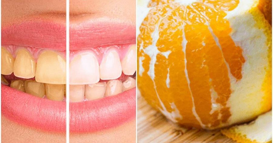 Cómo blanquear los dientes amarillos con remedios caseros