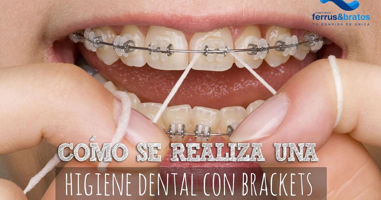 ¿Cómo cepillarte los dientes con brackets  1202f1b7e705