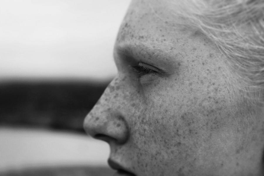 Eliminar manchas en la cara con agua oxigenada