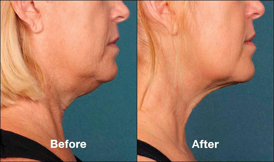 kybella-before-after-4-1