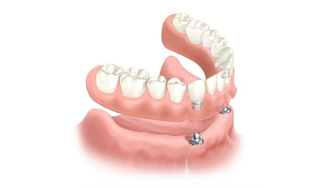 protesis-dental-sobre-implantes-clinica-dental-aviles-centro-dental-innova