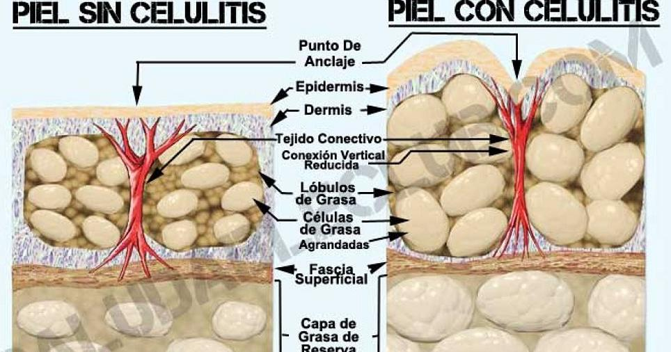 Consejos para combatir la celulitis eficazmente
