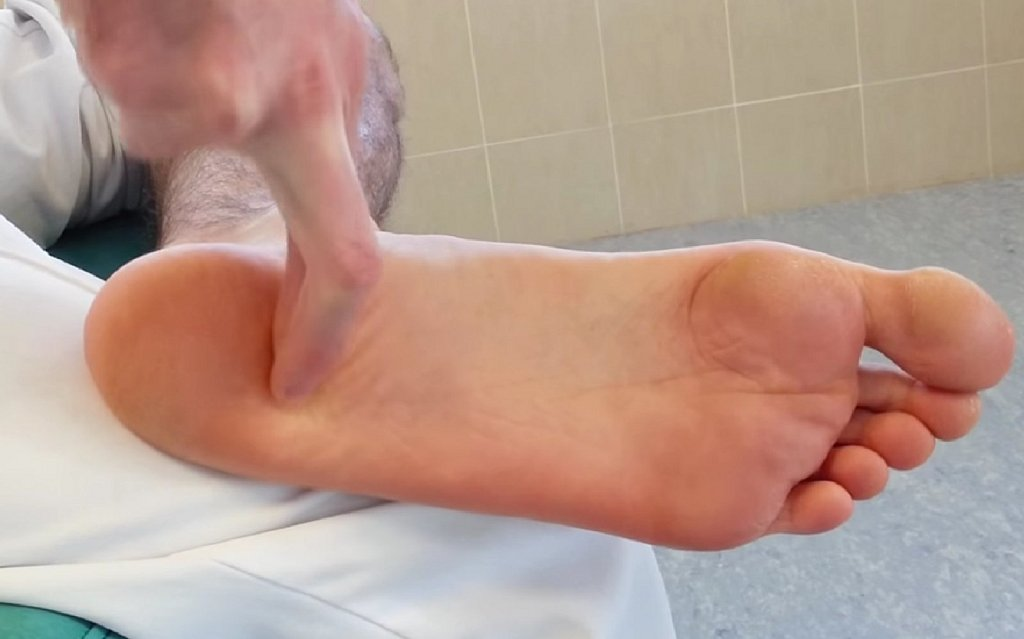celulitis en la planta del pie