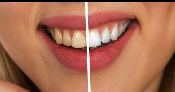 Aclarar rapido remedios los dientes caseros para