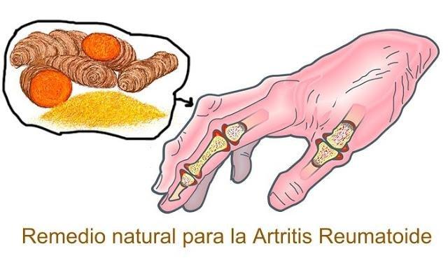 remedios caseros para combatir la artritis reumatoide