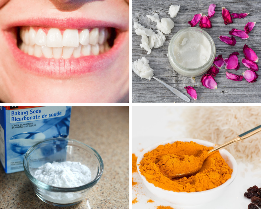 como quitar manchas oscuras en los dientes