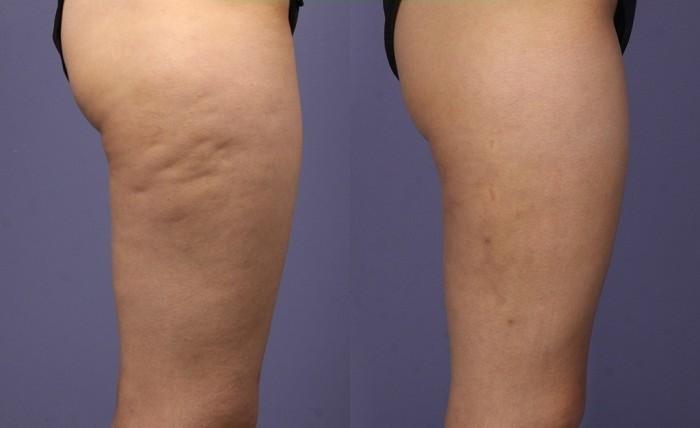 como erradicar la celulitis de las piernas
