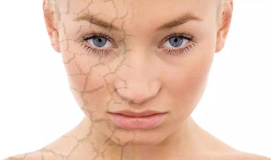 remedios caseros para la cara reseca y escamosa